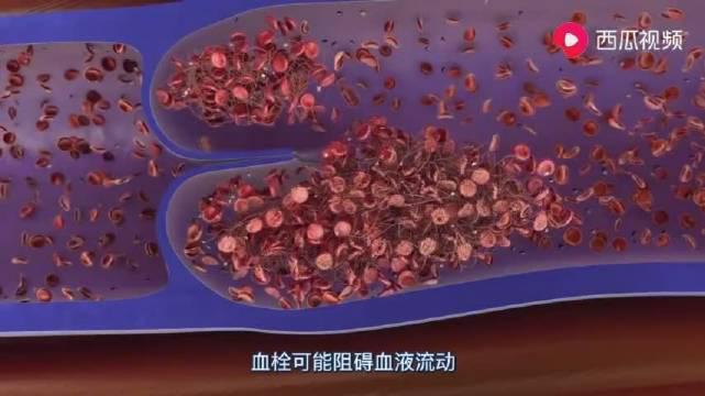 深静脉血栓如何导致肺栓塞?这是很多长期卧床患者