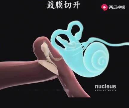 鼓膜平时都要好好保护,怕弄破了,为何有些中耳炎的,还需要切开