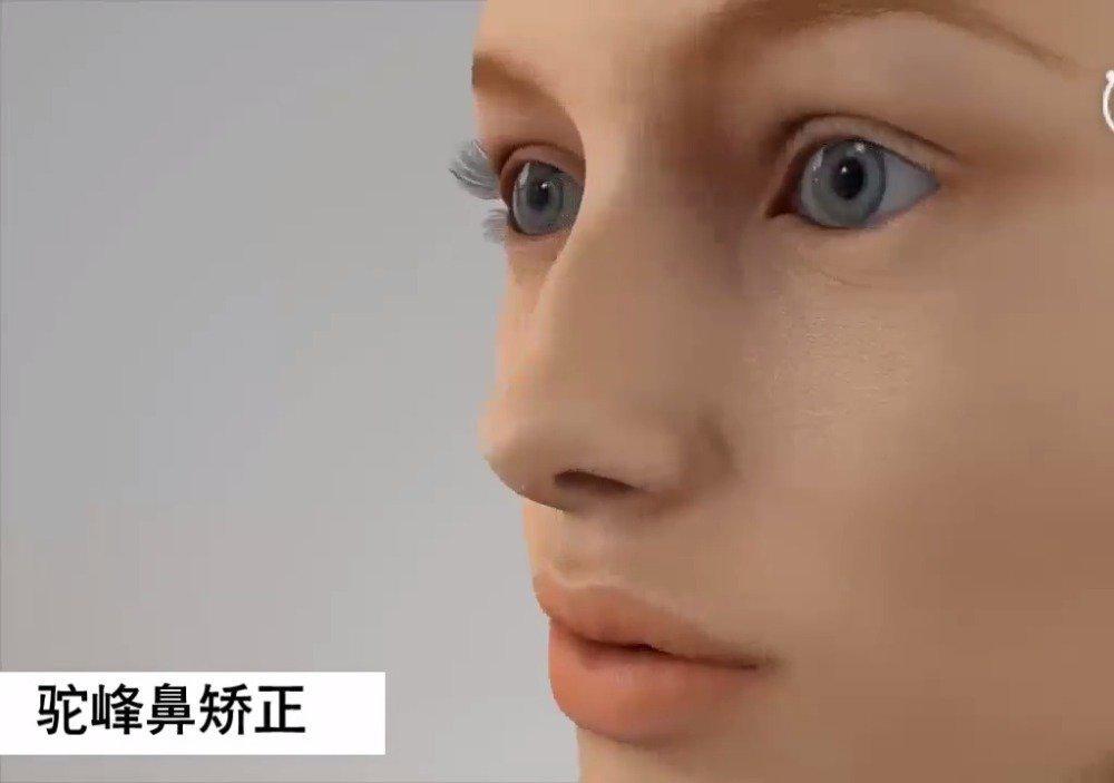 驼峰鼻矫正过程~