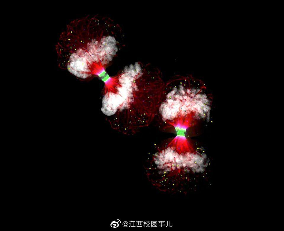 苏格兰一位生物学家用显微相机拍摄的癌细胞。