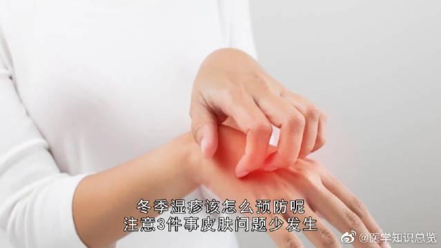 冬季湿疹该如何预防?留意3件事,减少皮肤问题发生