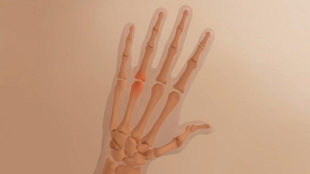 医学动画:类风湿性关节炎关节弹响