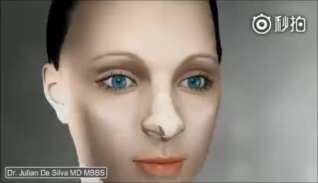 分享一个驼峰鼻、宽鼻矫正手术的视频