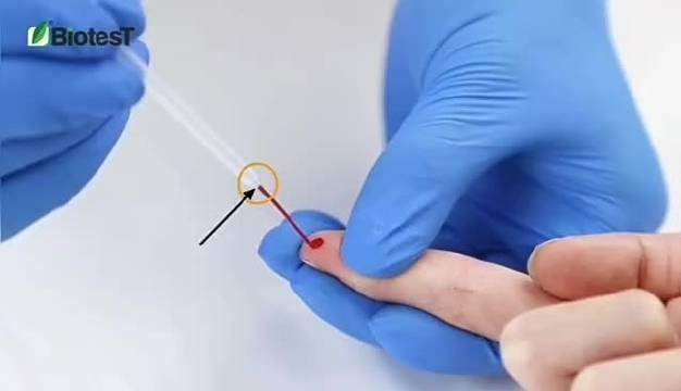 """美国新研发出来新冠测试剂,如同测怀孕,两道线就""""中""""了"""