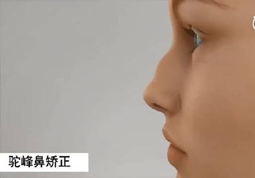 驼峰鼻矫正手术视频分享 对于女孩子来说……