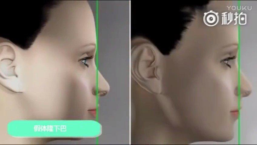 假体隆下巴是将雕刻好的假体植入下颌骨与肌肉之间……