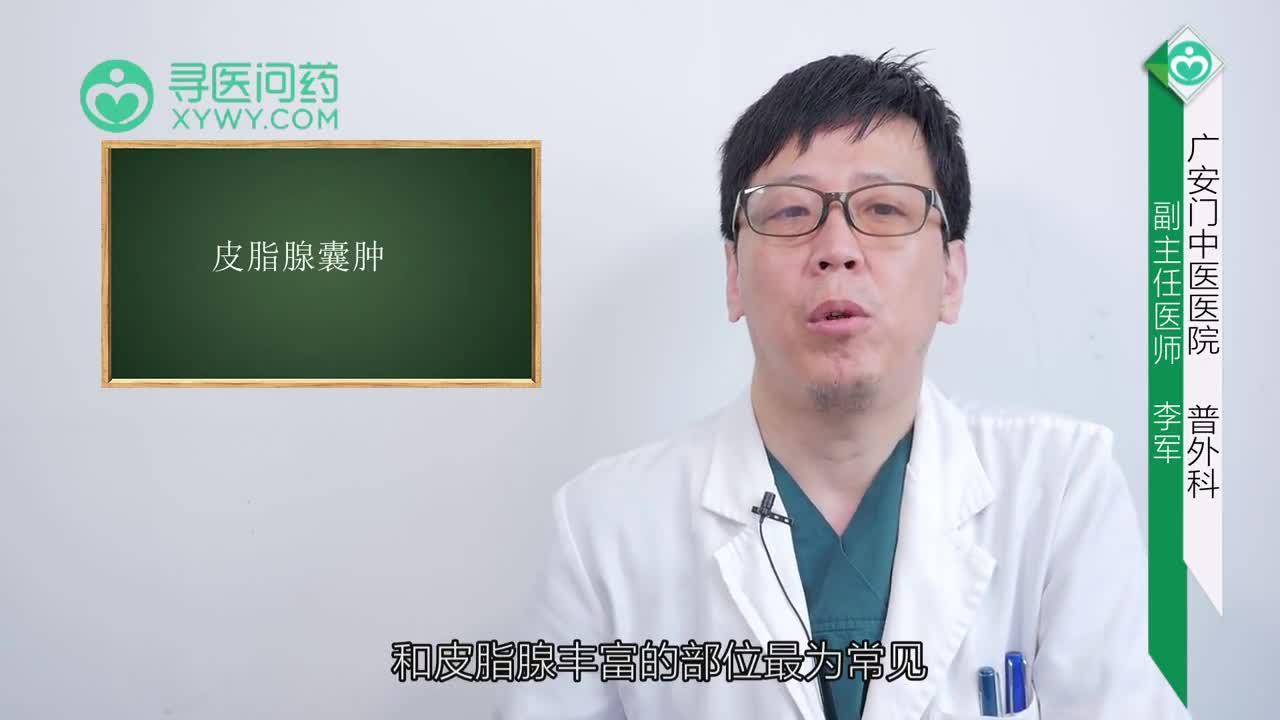 皮脂腺囊肿会自愈吗