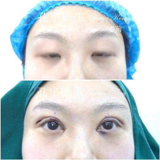 全切双眼皮开内眼角手术: 今天手术的姑娘眼部特征是单眼皮……