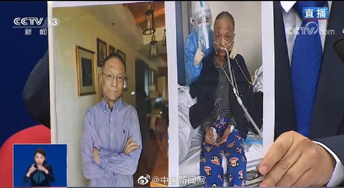 武汉中心医院易凡医生皮肤已变白图片
