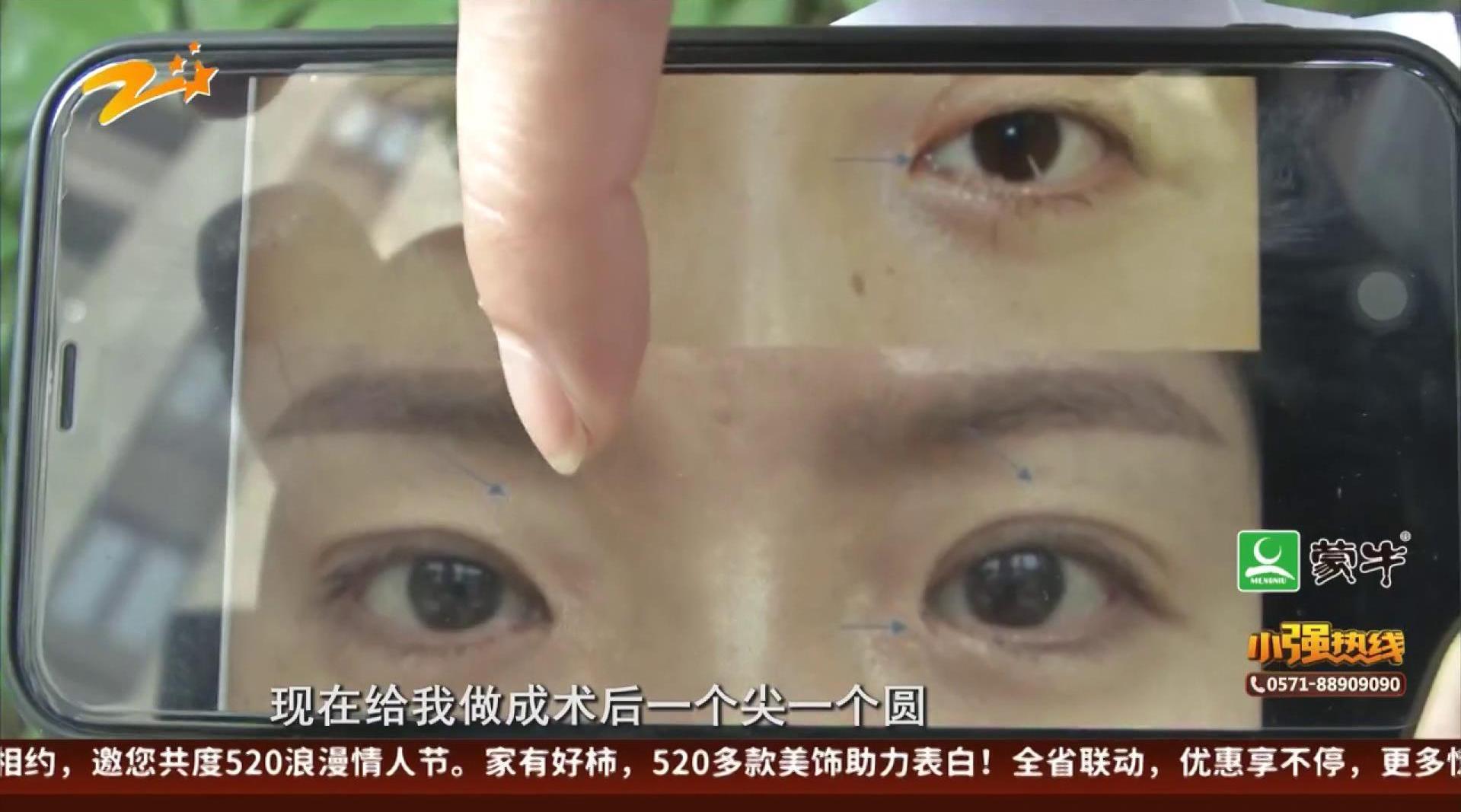 """开内眼角适合""""东方女性"""" 结果变大小眼?"""