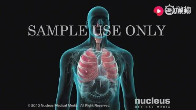 纤维支气管镜检查,直接看到气管内的变化