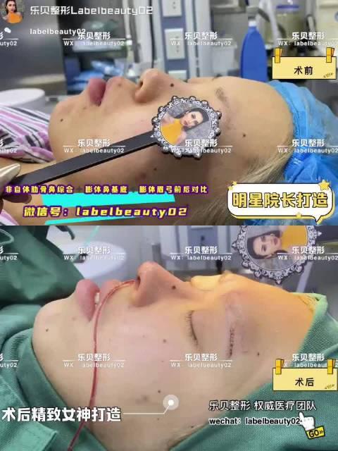 全脸打造对比,膨体眉弓➕膨体鼻基底➕非自体肋骨鼻综合