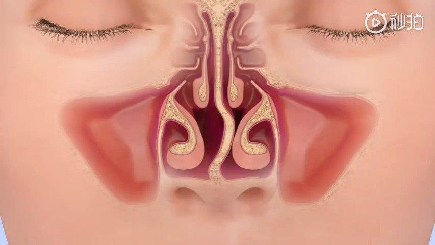 两种鼻中隔偏曲自测法:一是仰头观察鼻小柱位置……