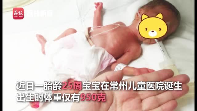 110天!常州成功救治950克25周超早产儿
