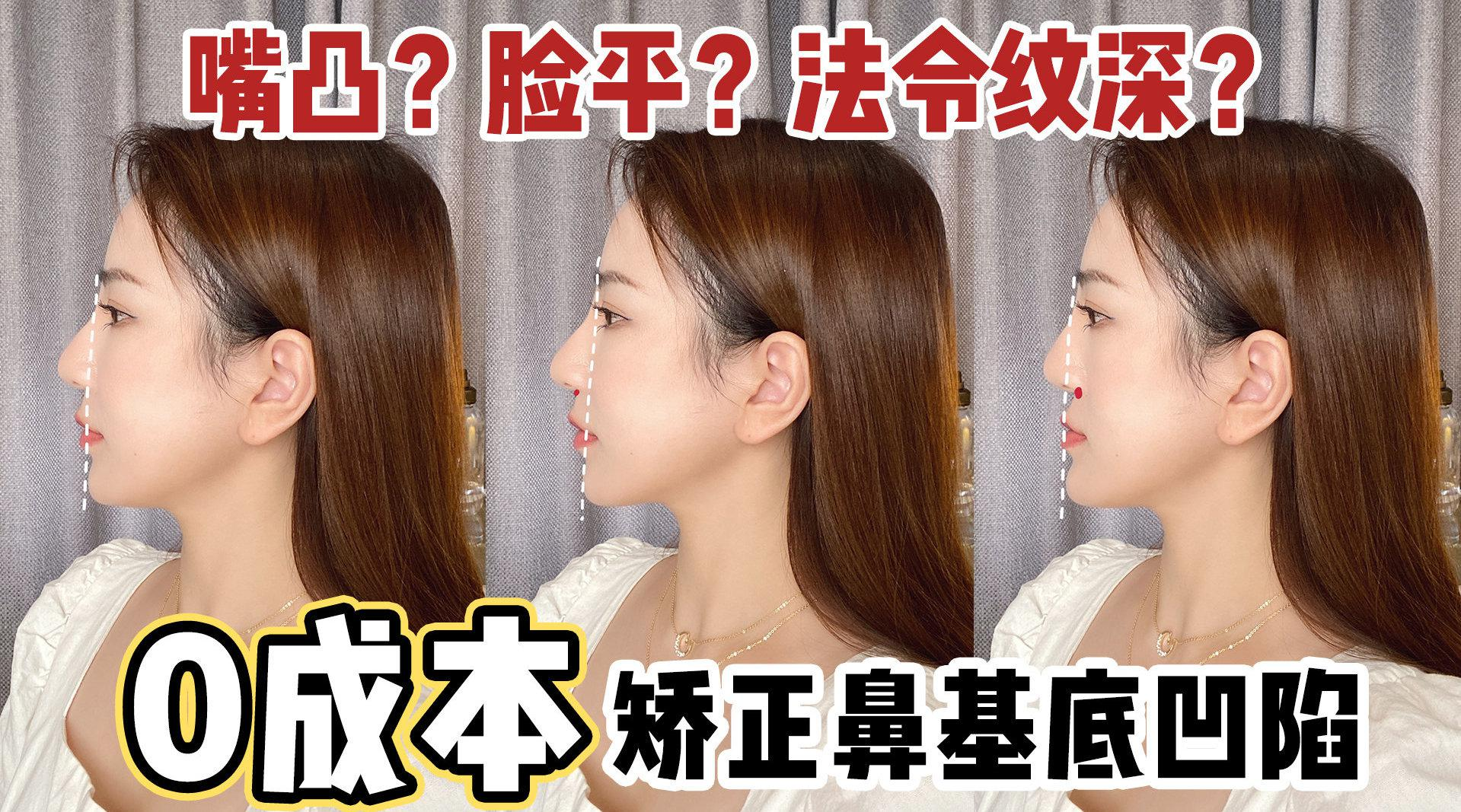 0成本矫正鼻基底凹陷 什么是鼻基底凹陷呢?