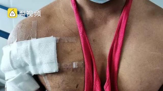 健身教练卧举190公斤杠铃撕脱胸大肌:突然失力