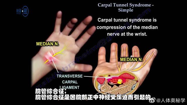 腕管综合征的症状都有什么?