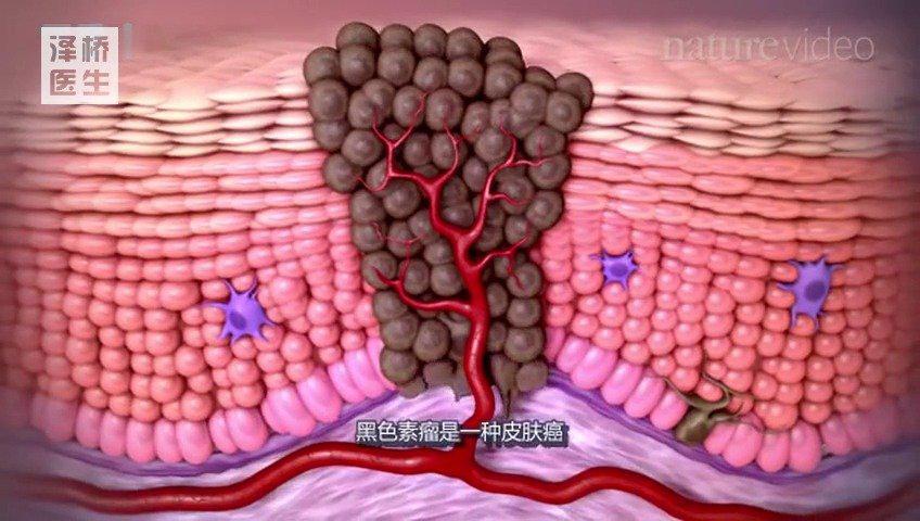 肿瘤免疫学和免疫疗法 肿瘤有良性肿瘤和恶性肿瘤之分……