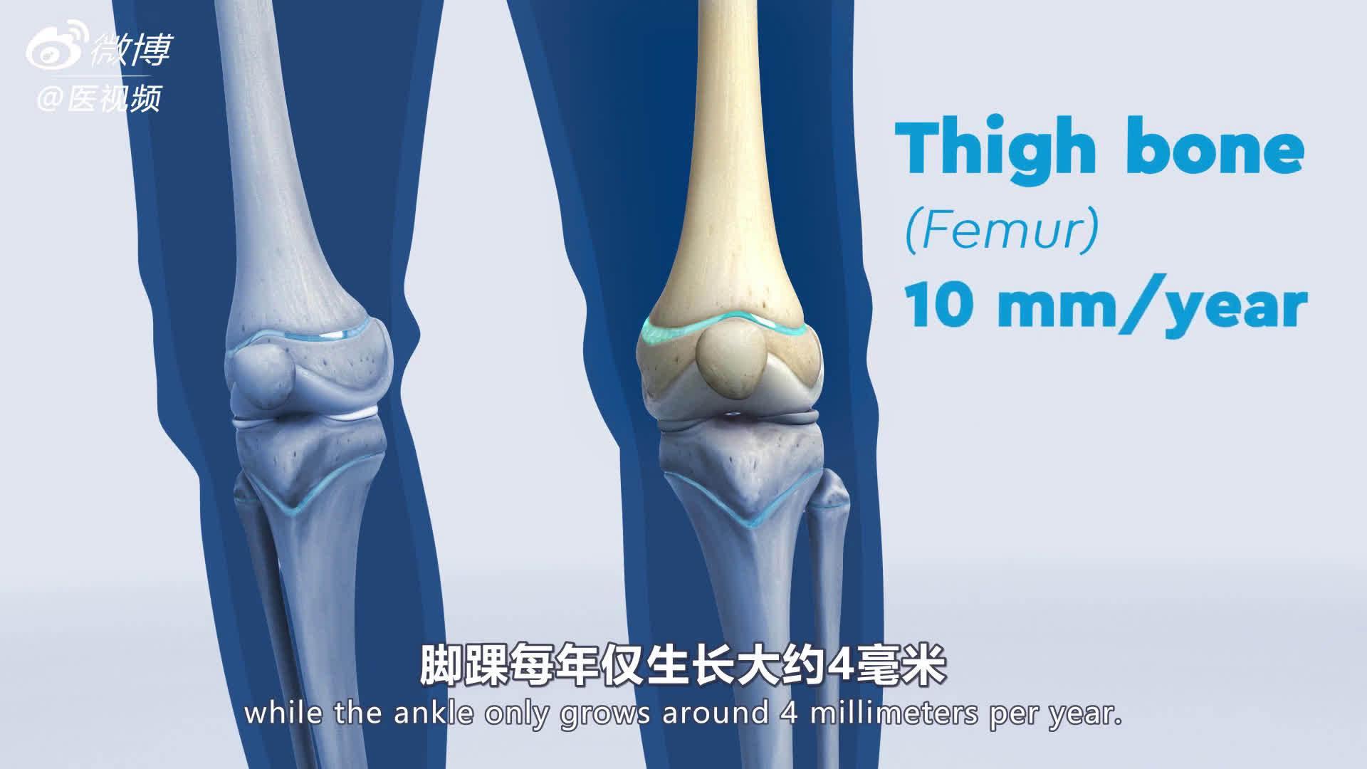 医学双语科普:骨骼生长和下肢畸形 视频翻译by@xyslyl 儿童的长