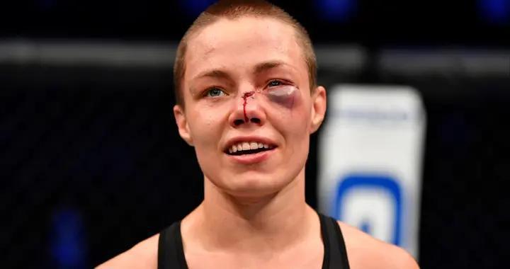 """罗斯眼下被打出个""""紫鸭蛋"""",公开向张伟丽道歉:收回对她的贬低"""