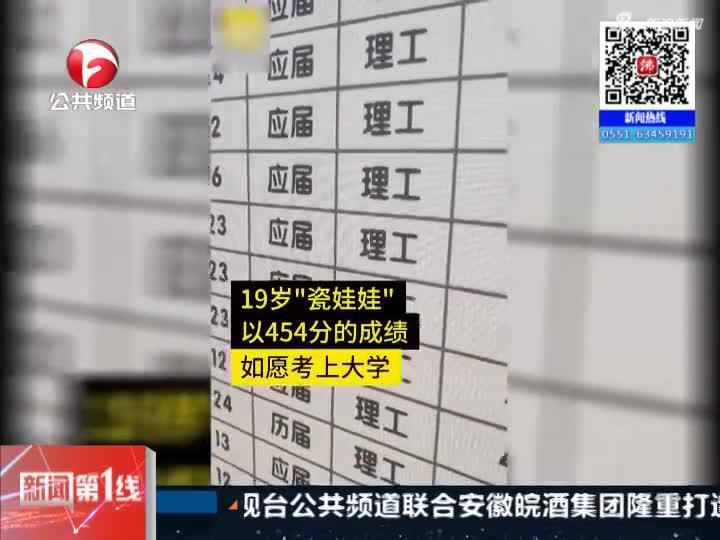 """《新闻第一线》阜阳:""""瓷娃娃""""考上大学  高出二本线19分"""