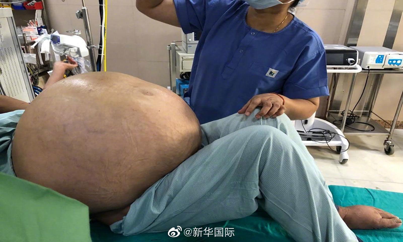 印女子剥除50千克重卵巢肿瘤 相当于患者一半体重