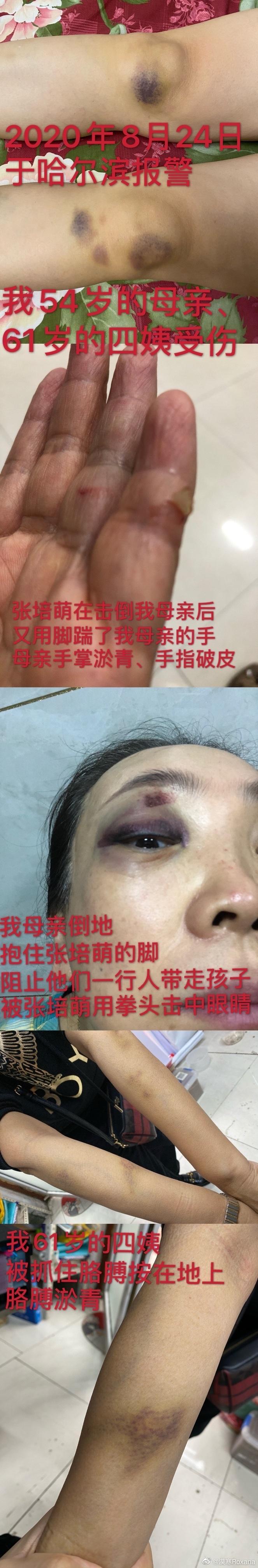 张培萌妻子控诉:父母被其殴打 他不让我见女儿