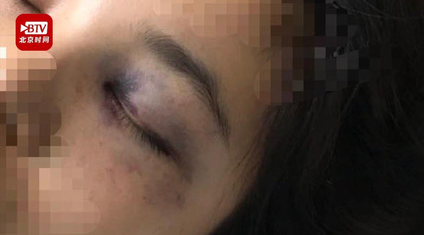 不堪家暴跳楼截瘫女子:很想知道他们施暴时在想什么