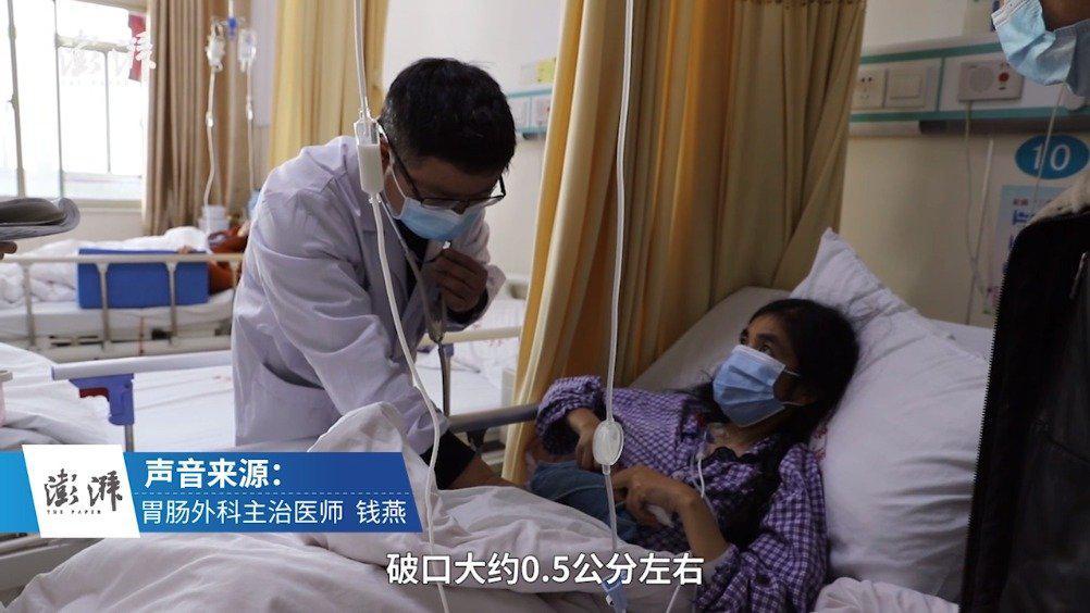 女子喝红枣粥误吞枣核刺穿小肠:2天后肚子剧痛就医