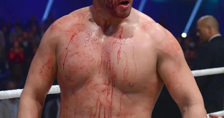 重量级世界拳王与网络喷子约架,被击中4枪险丧命,如今王者归来