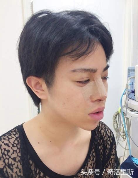 Allen还接受了隆鼻手术。