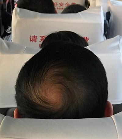 别瞧不起秃顶,稀疏的毛发里有星系