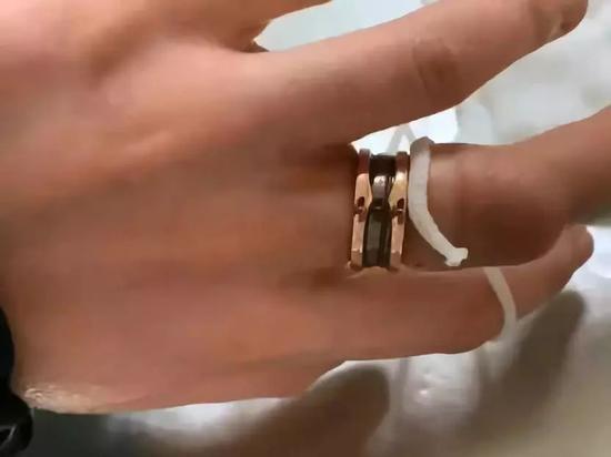 女子戴1万元戒指因长胖取不下来 花7万将其锯开