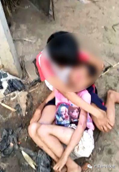 记者看到小琴身上受伤的地方伤痕还是很明显,但已无大碍。
