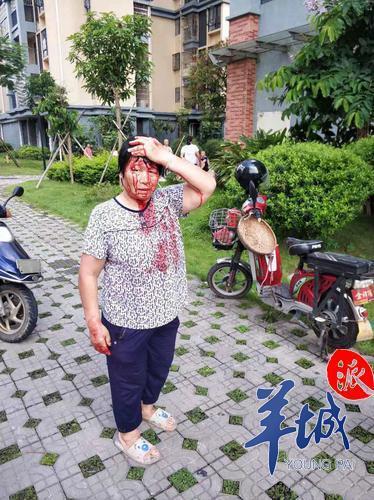 阿婆疑似被高空坠物砸伤