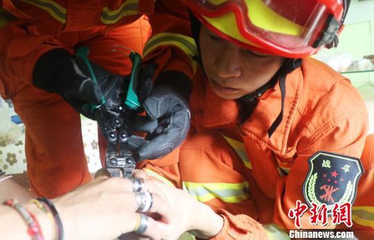 消防人员成功将全部53枚戒指取下 许国虎 摄