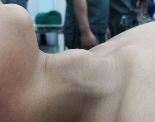 辗转求医均被告知要手术切除