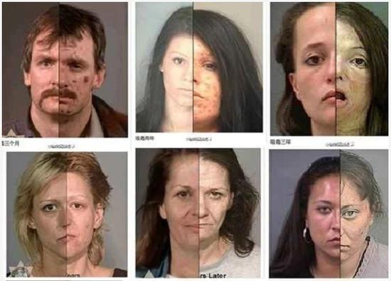 恐怖吗?这些吸毒人员平均年龄在20—35岁之间