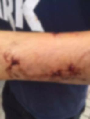 男子路过小区遭恶犬袭击 伤口触目惊心