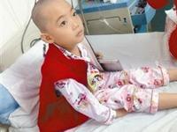 14岁地贫女孩面临化疗 提前冷冻卵巢组织保存生育力