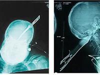 男子被凶徒尖刀插入后脑8cm 头顶刀自驾摩托报警获救