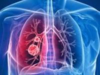 全国前两例新冠肺炎逝者 遗体解剖获得病理已送检