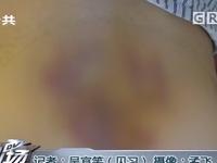 中山:女子因疼痛理疗店治疗后 臀部变马蜂窝