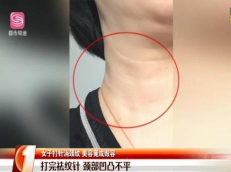深圳女子打祛纹针颈部凹凸不平