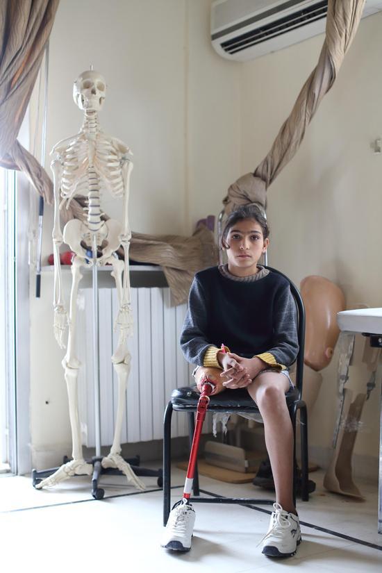 (一名13岁的叙利亚女孩儿在当地红新月会假肢康复中心接受治疗 摄影:中国日报 王敬)