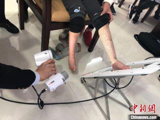 图为技师为残疾儿童扫描取样制作辅助器具。(资料图) 徐雪 摄