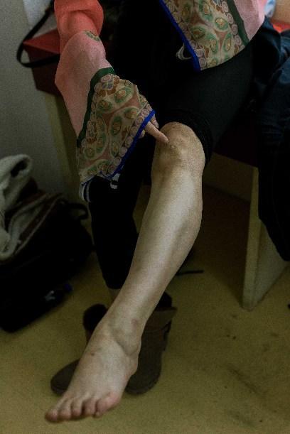 张博腿上的伤