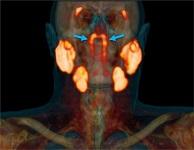 新发现的管状唾液腺:一个具有放疗风险的潜在新器官。