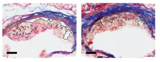 一种会吞噬导致心脏病斑块的纳米颗粒。