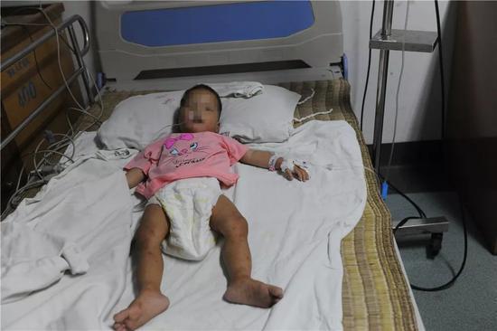 在医院里接受治疗的小娇,小手小脚都被野草割得一道道伤痕